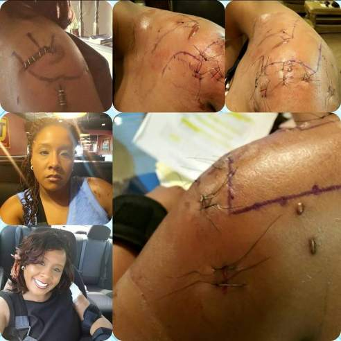Black Female Police Brutality Survivor needs 3rd Surgery Cleveland Black Lives Matter